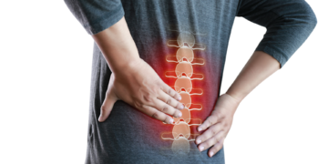 Discopatia L5 S1: sintomi ed esercizi