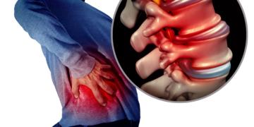 Sciatica: esercizi e rimedi naturali per infiammazione nervo sciatico