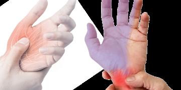 Sindrome del tunnel carpale: sintomi, cosa fare, esercizi e quando operare