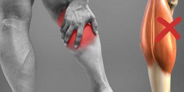 Strappo polpaccio: sintomi, rimedi, tempi di recupero