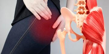 Dolore al gluteo destro o sinistro: cause, rimedi ed esercizi