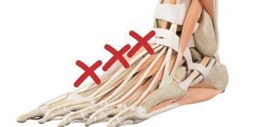 Dolore al collo del piede: cause e rimedi
