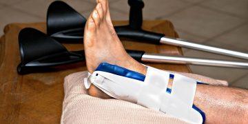 Frattura caviglia: come riconoscerla, sintomi e tempi di recupero