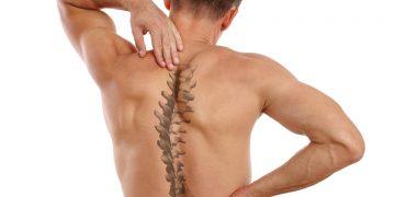 Scoliosi e mal di schiena: verità, sintomi e rimedi