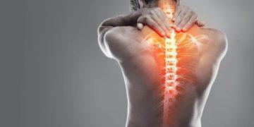 Contrattura schiena: sintomi, cosa fare, tempi di recupero
