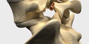 Spondilolistesi L5 S1: sintomi, esercizi e intervento