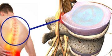 Ernia dorsale: cause, sintomi, cosa fare, cure ed esami diagnostici