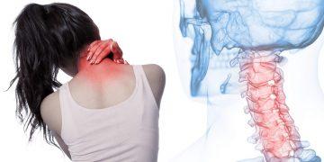 Discopatia o protrusione discale C5 C6: sintomi, diagnosi, rimedi ed esercizi