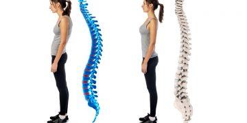 Postura scorretta: cos'è, sintomi, tipi, conseguenze e a chi rivolgersi
