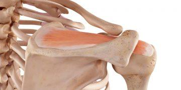 Tendine sovraspinato o sovraspinoso: cos'è, infiammazione, lesione o rottura, invertento in artroscopia