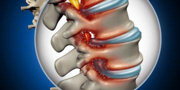 Stenosi lombare: cos'è, sintomi, intervento, convalescenza, rischi, rimedi naturali ed esercizi